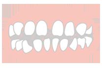 気になるすきっ歯を治すこともできます