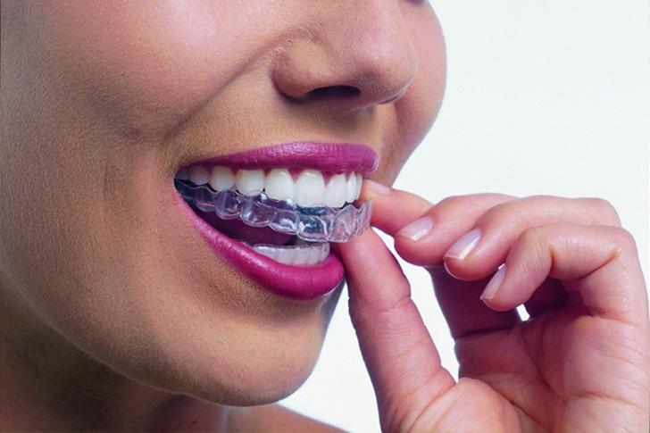 短期間・低価格で気になる部分の歯並びを治します