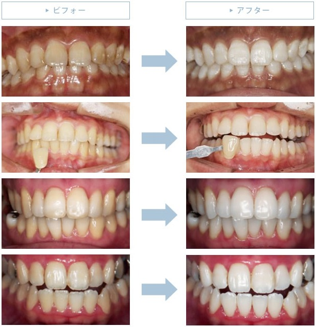 歯を白くきれいにして笑顔に自信を持ちませんか?