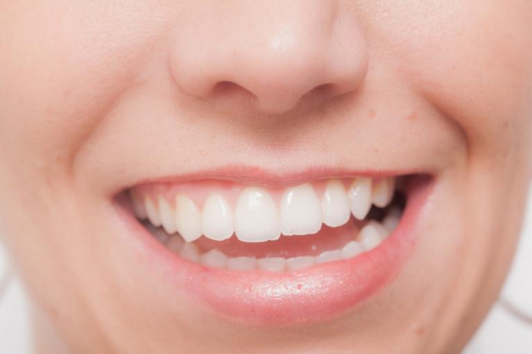 自然で美しい口元を作る「セラミック治療」