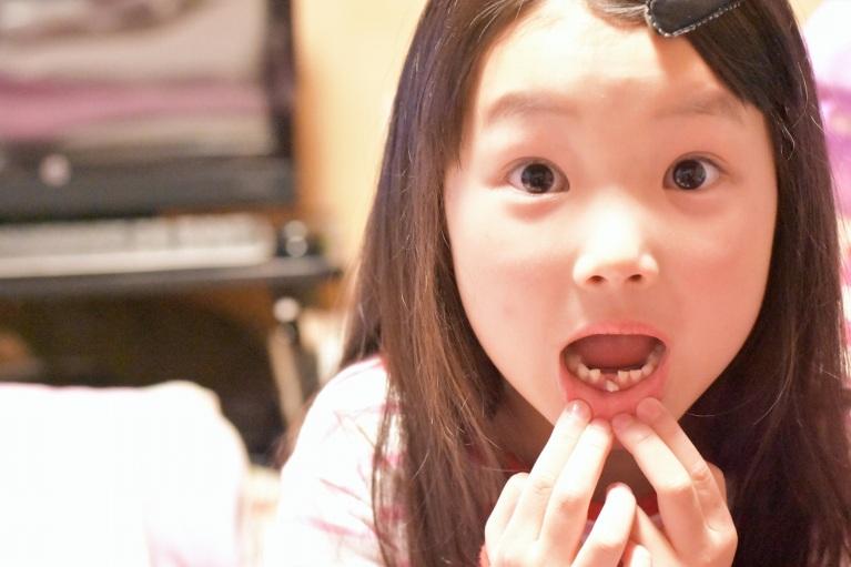 子供の歯並びを治したい