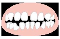 どうしてすきっ歯になるのか?