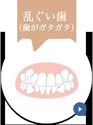乱ぐい歯(歯がガタガタ)